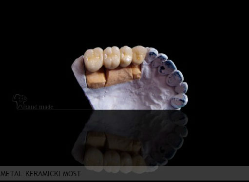 Zubotehnička laboratorija Strong Dent